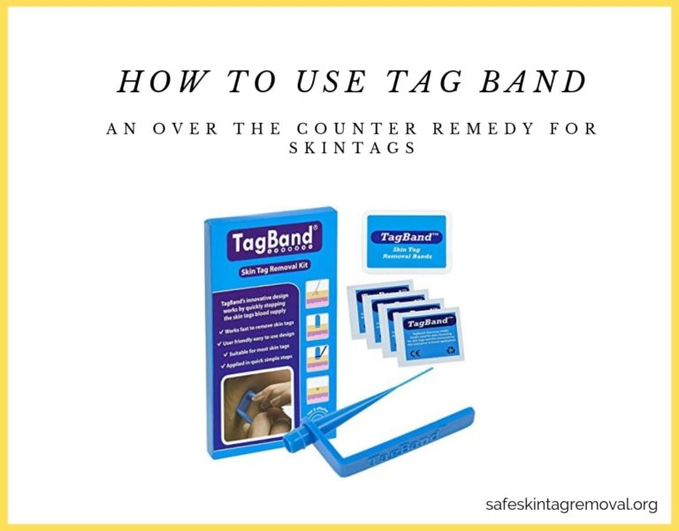 Tagband Takes Off Your Skin Tags Skin Tag Removal
